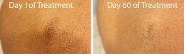 before and after - reduce the appearance of scars