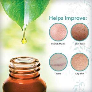 ReTone Body Oil helps improve stretch marks, scars, skin tone and dry skin