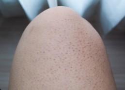 red keratosis pilaris bumps on thigh